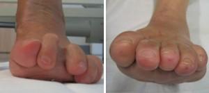 a) Luxierte Zehen bei RA b) nach Stainsby-Korrektur