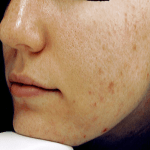 Subject photo before use of omega-3 poly-nutrient capsules (acne vulgaris)