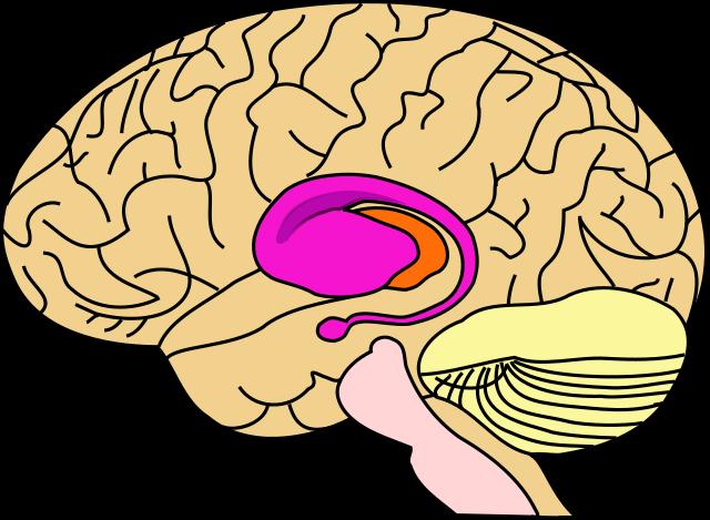 Betroffene Hirnregionen bei Chorea Huntington