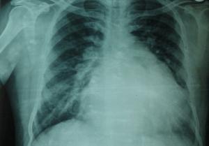 roentgenbild-lunge