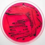 salmonellen-spezies-wächst-auf-XLD-agar