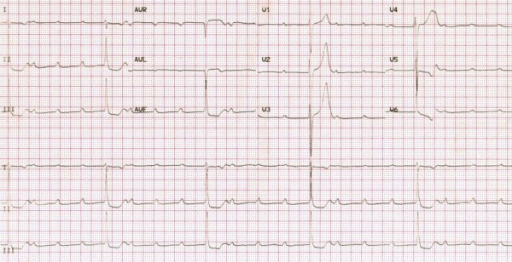 Adams-Stokes attack as the first symptom of acute rheumatic fever