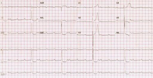 "Bild: ""Adams-Stokes attack as the first symptom of acute rheumatic fever"" von Carano N, Bo I, Tchana B, Vecchione E, Fantoni S, Agnetti A. Lizenz: CC BY 2.0"