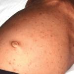 Hautbefall bei Langerhans-Zell-Histiozytose