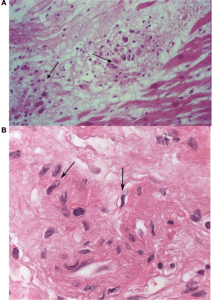 Incidental histological diagnosis of acute rheumatic myocarditis
