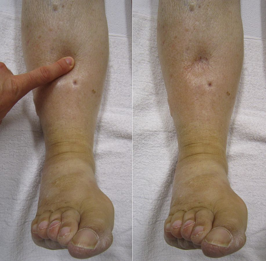 Pitting edema during and after the application of pressure to the skin.