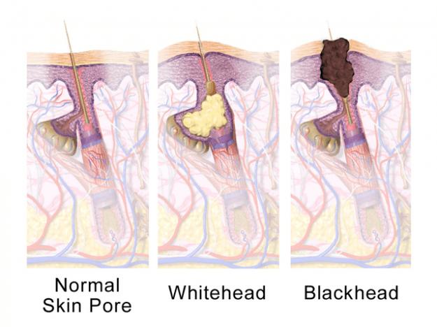 Grafik zeigt normale und verstopfte Poren