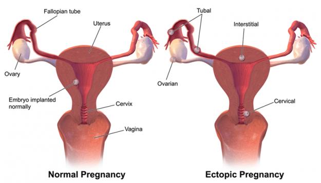 Arten der ektoptischen Schwangerschaft