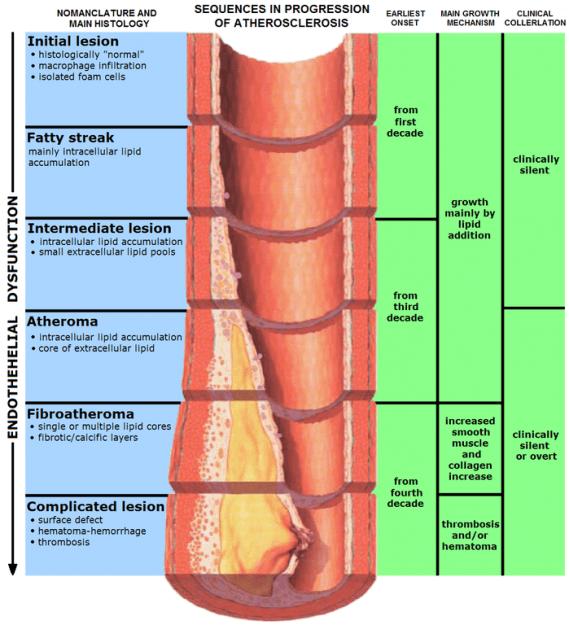 Atherosklerose-Pathogenese