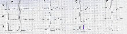 Belatungs-EKG eines Patienten mit koronarer Herzkrankheit