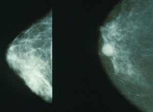 Brustkrebs im Mammogram