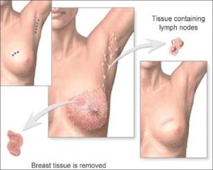 Brustkrebs operativ entfernen