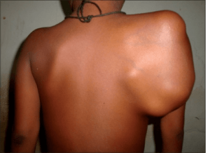 Clinical photograph showing massive scapular swelling
