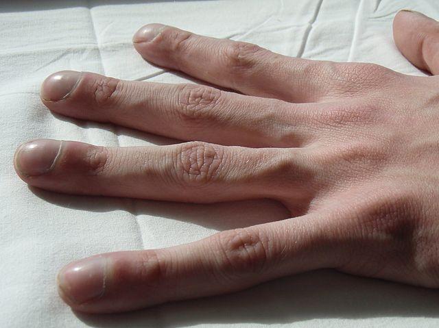 Mukoviszidose U2013 Zystische Fibrose Symptome Diagnose U0026 Therapie