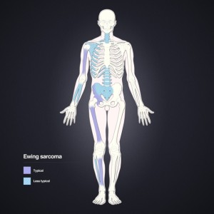 Distribution of Weing´s Sarcoma