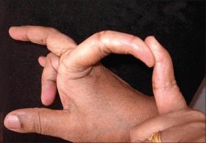 Ehlers Danlos Syndrom Finger