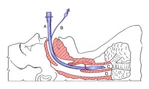 Endotracheale Intubation