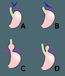 Formen der Hiatushernie: A - normale Anatomie, B - Vorstufe, C - axiale Gleithernie, D - paraösophageale Hernie