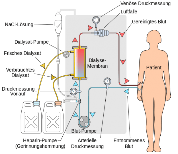 Haemodialyse