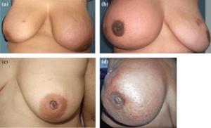 Inflammatorisches Mammakarzinom