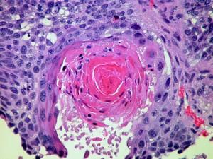 Krebserkrankung der Haut