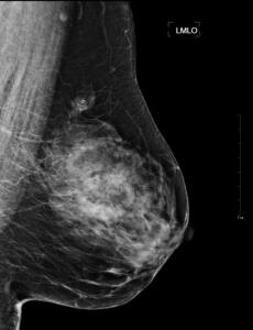 Mammogram-Ansicht