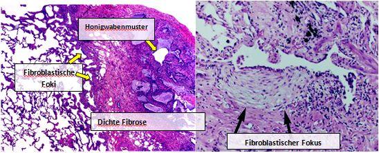 Mikroskopische Aufnahme der histopathologischen Erscheinungen bei gewöhnlicher interstitieller Pneumonie.