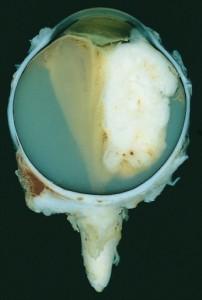 Retinoblastom-Auge