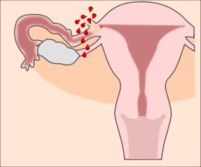 Schematische Darstellung einer Tubarruptur bei einer Extrauteringravidität.