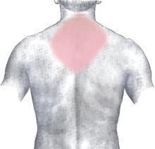 Schmerzregion Rücken