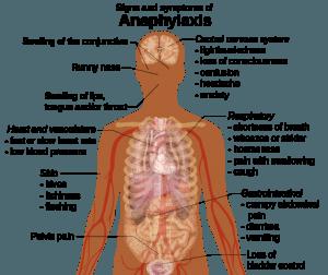 Symptome der Anaphylaxie