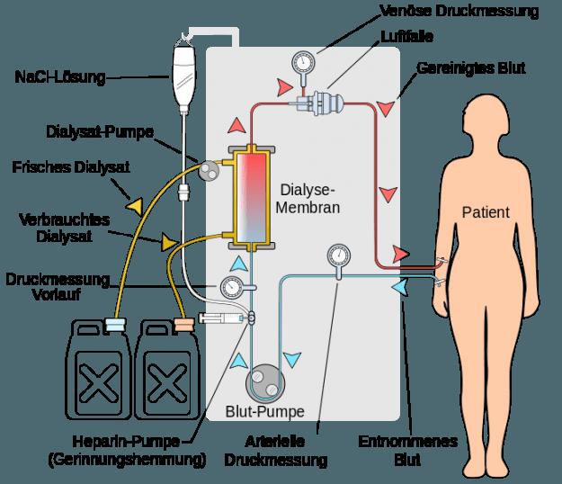 Vereinfachter Kreislauf zur Hämodialyse