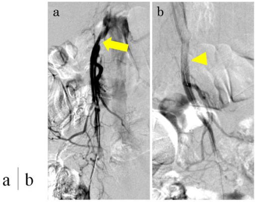 diese abbildung zeigt eine stenose im proximalen Teil der arteria mesenterica superior