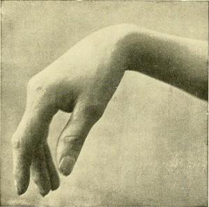 dieses bild zeigt eine fallhand