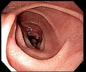 endoskopie-bei-zoeliakie