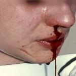 nasenbluten