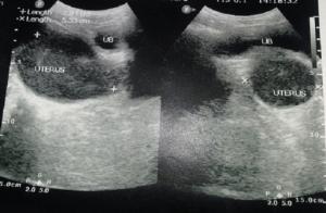 ultraschallbild-gebärmutter-unperforiertes-hymen-2