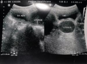 ultraschallbild-gebärmutter-unperforiertes-hymen