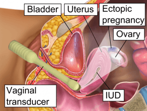 vaginaler ultraschall