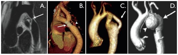 Aortenisthmusstenose