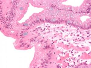 Micrograph eines Barrett esophagus