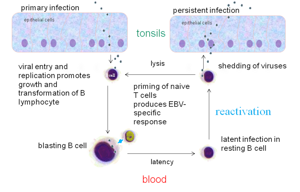 oral t cell lymphoma