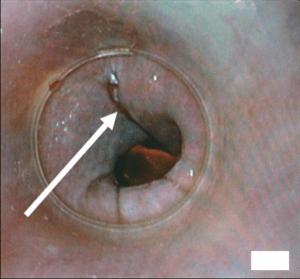Boerhaave-Syndrom als eine Komplikation der Koloskopie Vorbereitung