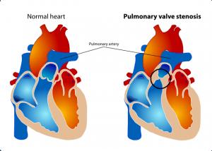 Pulmonalstenose
