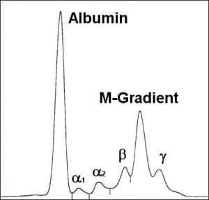 Serum-Elektophorese-IgA-Myelom
