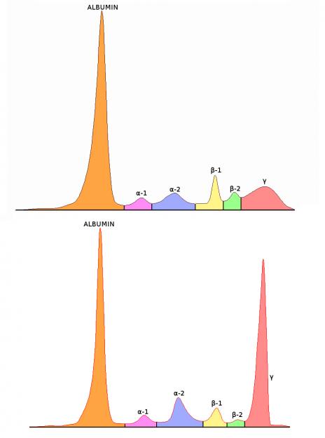 Serumelektrophorese