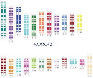 Trisomie 21 – Chromatogramm