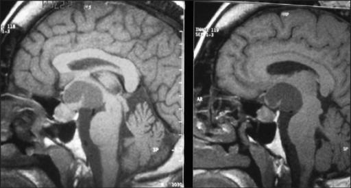 akromegalie-patientin-MRT