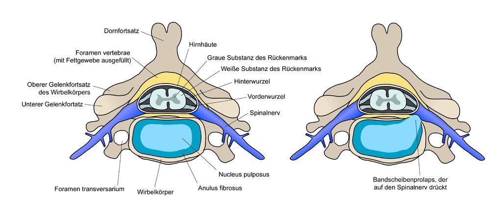 diese abbildung zeigt einen bandscheibenvorfall im schnitt durch die wirbelsaeule