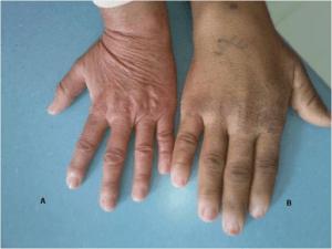 hand-akromegalie-patientin-im-vergleich